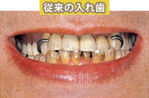 磁性アタッチメントを利用した入れ歯 施術前