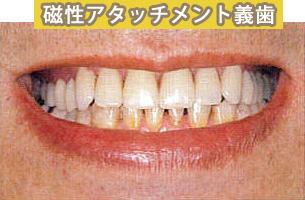 磁性アタッチメントを利用した入れ歯 施術後