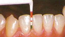 ブラッシング状態、歯、歯肉のチェック